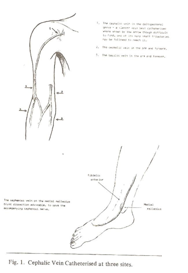 venesection intravenous catheterisation