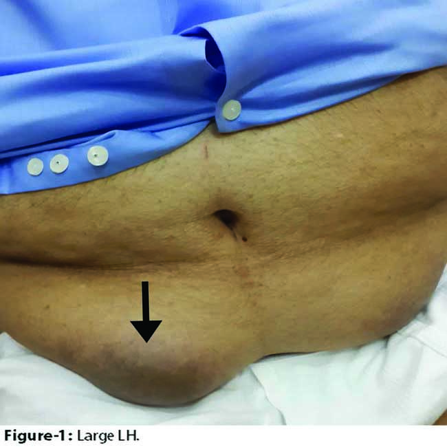 Diabetic Injection Sites: Lipohypertrophy