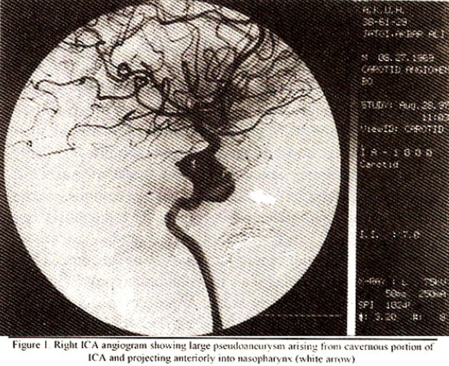 Endovascular Embolization of Taumatic Intracavernous ...