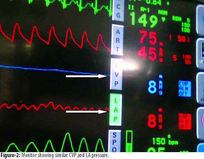 Transatrial Access For Left Atrial Pressure Lap