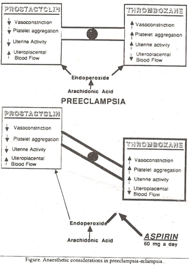 pregnancy induced hypertension pih and preeclampsia essay Pregnancy induced hypertension (pih) is a condition wherein vasospasm occurs during pregnancy in both the small and large arteries in the body also known as gestational hypertension  pregnancy induced hypertension is a form of high blood pressure in pregnancy.